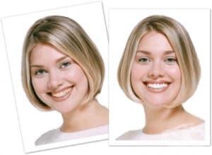 Колко дълго ще продължи ефектът на процедурата за избелване на зъбите?