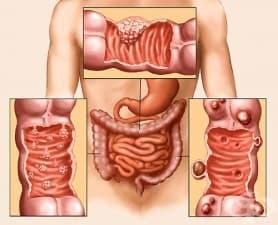 Рак на дебелото черво