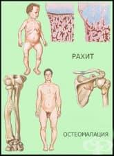 Как се развива витамин Д недоимъчният рахит