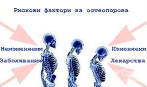 Рискови фактори за остеопороза