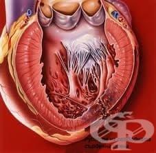 Усложнения при инфаркт на миокарда