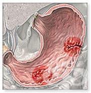 Кои са симптомите и признаците при язва?