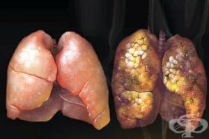Изчистете организма си от катраните и никотина с 5 природни средства