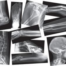 Травми на костите в спорта