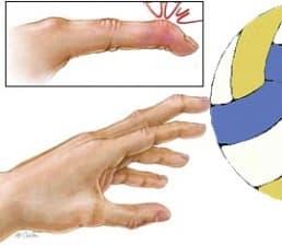 Навяхване и изкълчване на пръстите на ръката при спорт