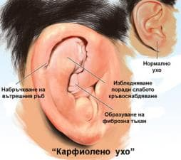 Травма на външното ухо при спортисти