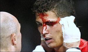 Разкъсно-контузни и порезни рани в спорта
