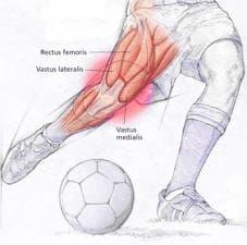 Травма на четириглавия бедрен мускул в спорта