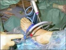 Артроскопия на глезен