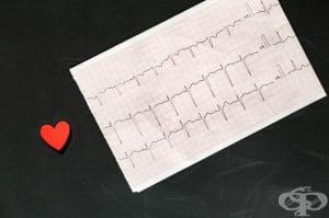 Електрокардиограма (ЕКГ)