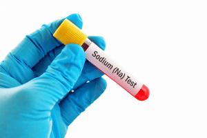 Изследване на натрий в кръвта