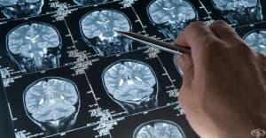 Компютърна томография (КТ) на глава