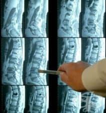 ЯМР на гръбначния стълб