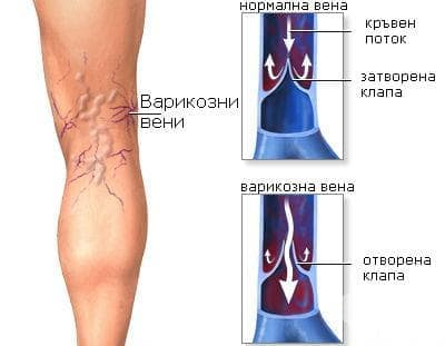 Алтернативно лечение на разширените вени - изображение