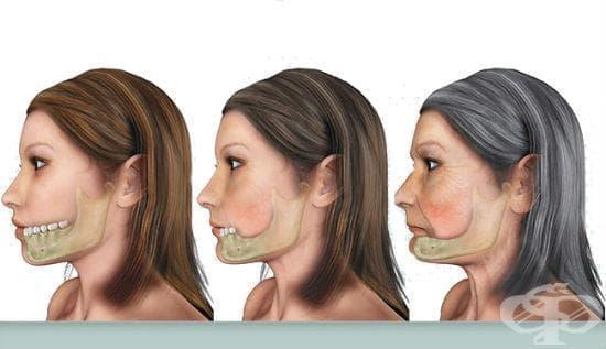 Алтернативна терапия при загуба на кост - изображение