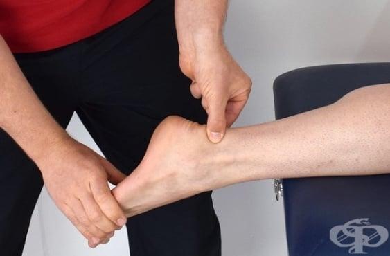 Народна медицина при травма на ахилесовото сухожилие - изображение