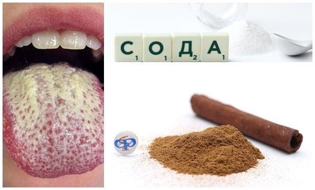 Домашно лечение на гъбички в устата - изображение