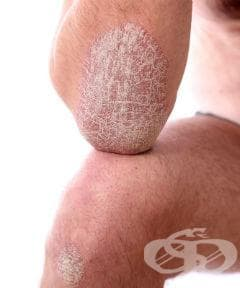 Алтернативни средства за контрол на псориазиса - изображение