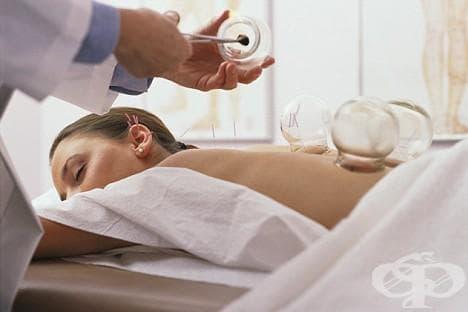 Какво представлява вендузотерапията, видове вендузи и методи на лечение - изображение