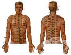 Акупунктура - медицина от древен Китай - изображение