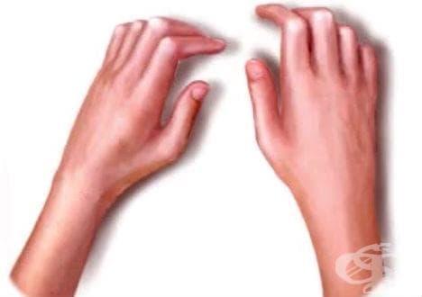 Алтернативни средства от полза в терапията на склеродермия - изображение