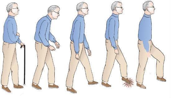 Алтернативни подходи при лечение на атаксия - изображение