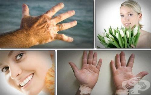 Алтернативни методи за лечение на витилиго - изображение
