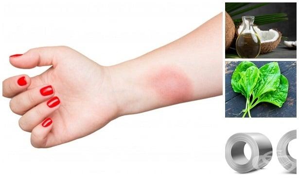 Алтернативно лечение при изгаряне на кожата - изображение