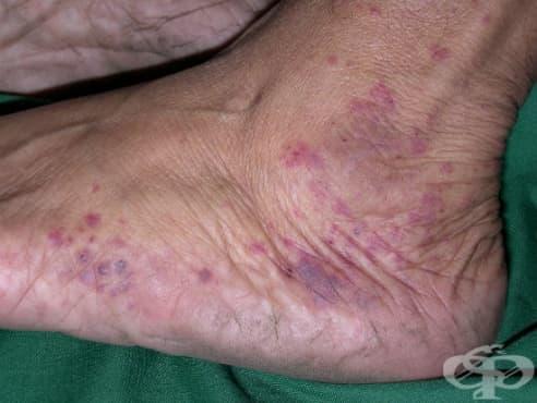 Алтернативно лечение на алергичен васкулит - изображение