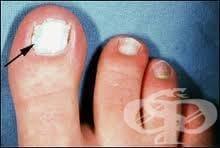 Алтернативно лечение на гъбичките по краката и ноктите - изображение