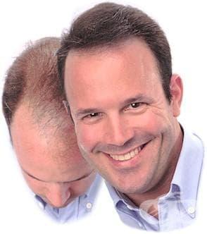 Алтернативно лечение на косопада - изображение