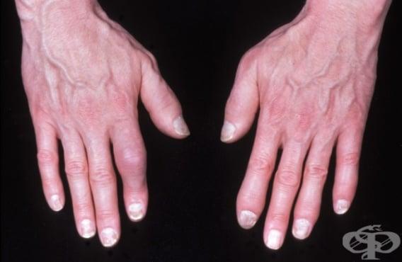 Алтернативно лечение на ревматоиден артрит - изображение