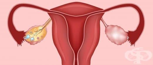 Билки при Синдрома на поликистозните яйчници - изображение