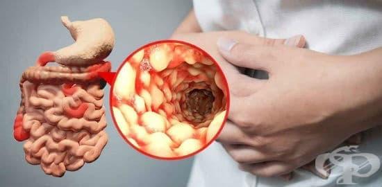 Диета и натурални средства срещу болест на Крон - изображение