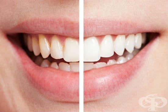 Домашни рецепти за избелване на зъбите - изображение