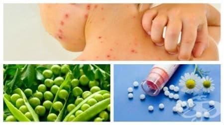 Домашни средства и хомеопатия срещу варицела - изображение
