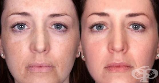 Домашни средства за изравняване на тена на лицето - изображение