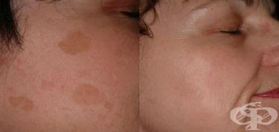 Домашни средства за премахване на кафяви петна по лицето и тялото - изображение