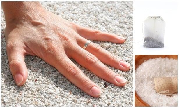 Домашно лечение срещу подути пръсти на ръцете - изображение