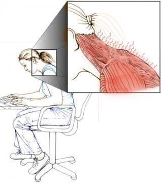 Домашно лечение при възпаление на мускулите - изображение