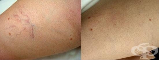 Ефективно домашно лечение на паяковидни вени - изображение