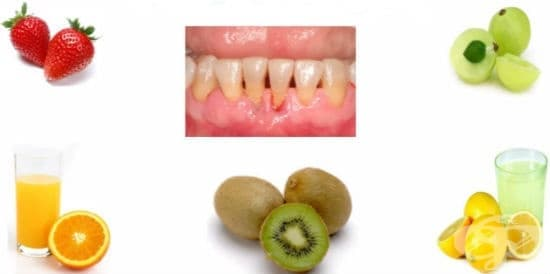 Естествени средства за лечение и превенция на недостиг на витамин С и скорбут - изображение