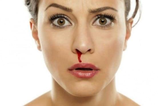 Хомеопатия при кървене от носа - изображение