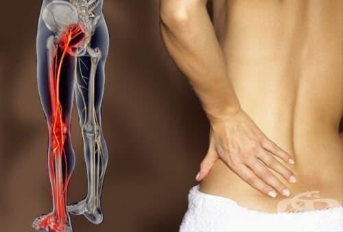 Ишиас - билки и алтернативни техники за облекчаване на болката - изображение