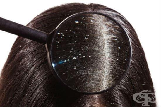 Лечение на пърхот с хомеопатия - изображение