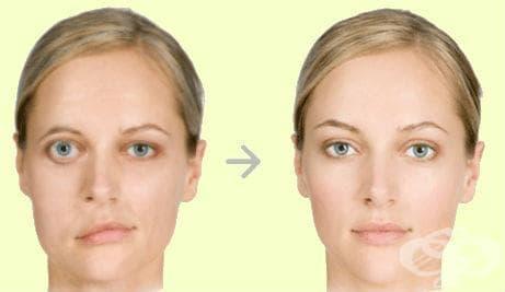 Натурални средства срещу парализа на лицевия нерв - изображение