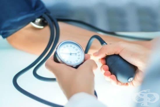 Отстраняване на каротидно телце - революционно откритие в терапия на високо кръвно налягане - изображение