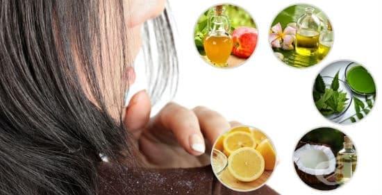Пърхот - причини и домашни рецепти за лечение - изображение