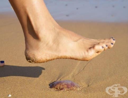 Как да си помогнем, ако ни опари медуза - изображение