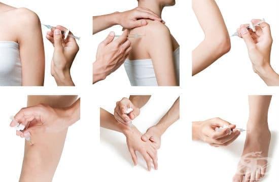 Пролотерапия - алтернативна терапия при болки в гърба и ставите - изображение
